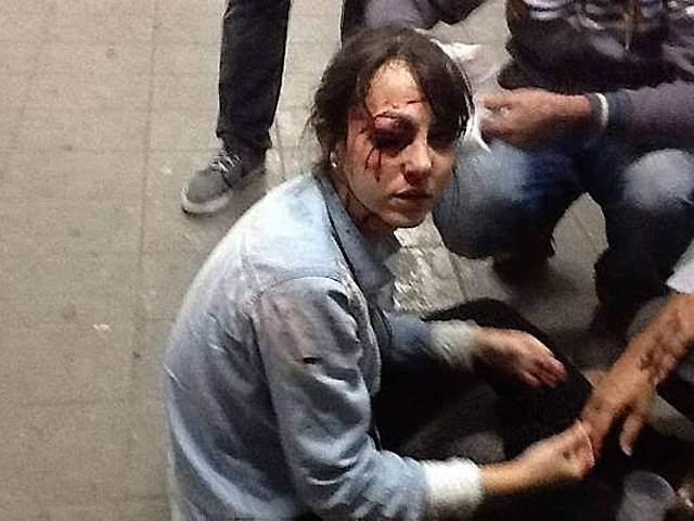 La journaliste de la Folha de Sao Paulo, blessée par des flics